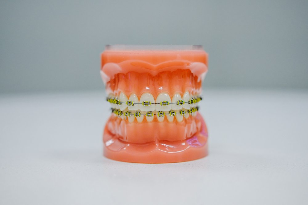 Closing gaps with Invisalign treatment